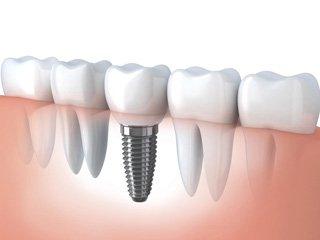 Имплантация зубов клиника
