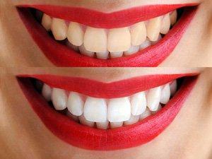 Лазерная чистка зубов Киев