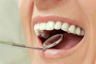 Протезирование зубов, имплантация