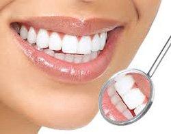 Снятие зубного камня Киев