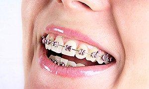 Стоимость брекетов на две челюсти