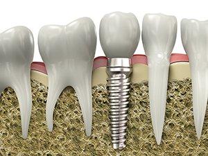 Стоимость имплантов зубов